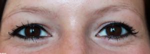 7_permanentni_makeup_prije-300x108