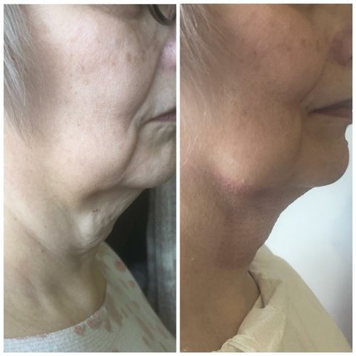Plasma-Fibroblast-side-neck-lift-500x500